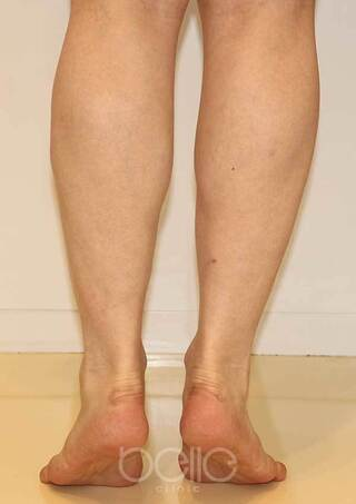 ベル美容外科クリニックのボトックス(ふくらはぎ)の症例写真(ビフォー)