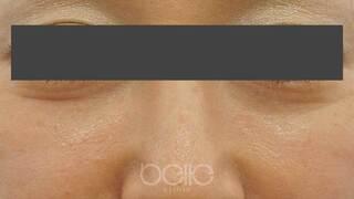 ベル美容外科クリニックのベビーコラーゲンの症例写真(ビフォー)