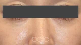 ベル美容外科クリニックのベビーコラーゲンの症例写真(アフター)