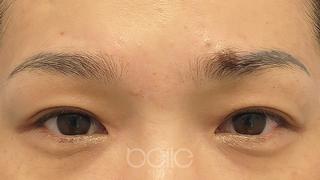 ベル美容外科クリニックの二重埋没法の症例写真(アフター)