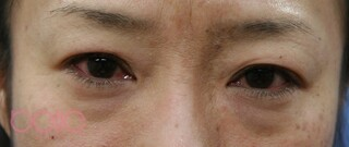 ベル美容外科クリニックの眉毛下切開の症例写真(ビフォー)