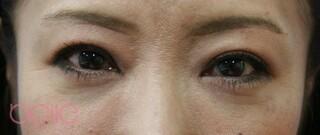 ベル美容外科クリニックの眉毛下切開の症例写真(アフター)