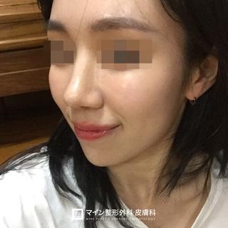 マイン整形外科・皮膚科の鼻整形+脂肪移植+唇ヒアルロン酸の症例写真(アフター)