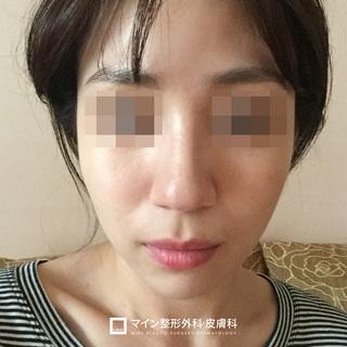 マイン整形外科・皮膚科の鼻整形+脂肪移植+唇ヒアルロン酸の症例写真(ビフォー)