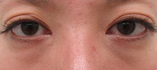 高崎TAクリニックアソシエの全切開法+目尻切開術+グラマラスライン切開法+下眼瞼脱脂術の症例写真(ビフォー)