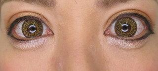 高崎TAクリニックアソシエの全切開法+目尻切開術+グラマラスライン切開法+下眼瞼脱脂術の症例写真(アフター)