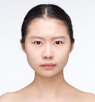 バノバギ整形外科の輪郭3点(頬骨、前顎、エラ)+貴族手術の症例写真(ビフォー)