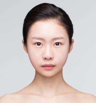 バノバギ整形外科の輪郭3点(頬骨、前顎、エラ)+貴族手術の症例写真(アフター)