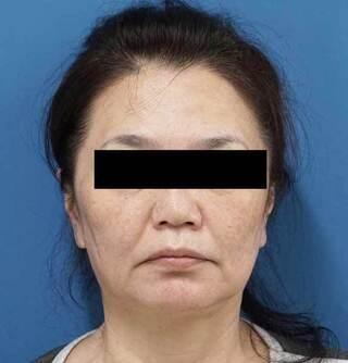 もとび美容外科クリニック新宿院のミントリフトミニ14本の症例写真(ビフォー)