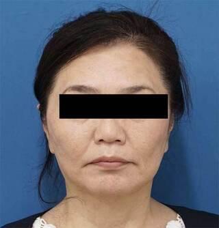 もとび美容外科クリニック新宿院のミントリフトミニ14本の症例写真(アフター)