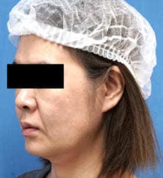 もとび美容外科クリニック新宿院のVOVコグリフトの症例写真(ビフォー)