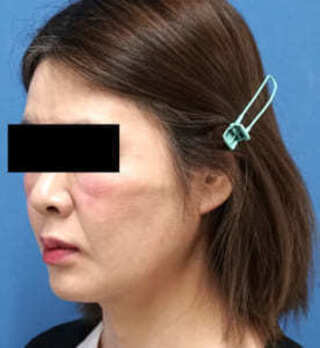 もとび美容外科クリニック新宿院のVOVコグリフトの症例写真(アフター)