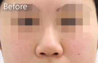 MIYAフェイスクリニックの隆鼻術(鼻プロテーゼ)の症例写真(ビフォー)