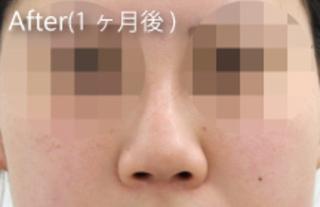 MIYAフェイスクリニックの隆鼻術(鼻プロテーゼ)の症例写真(アフター)