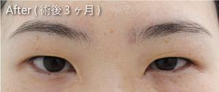 MIYAフェイスクリニックの目頭切開(Z形成法)の症例写真(アフター)