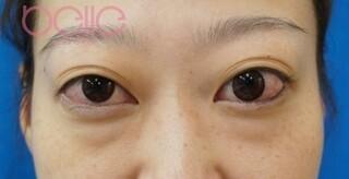 ベル美容外科クリニックの下眼瞼脱脂の症例写真(ビフォー)