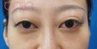 ベル美容外科クリニックの下眼瞼脱脂の症例写真(アフター)