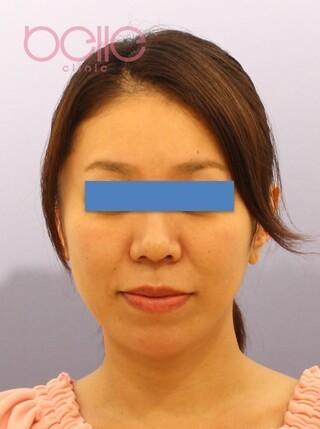ベル美容外科クリニックのアンカーリフトの症例写真(ビフォー)