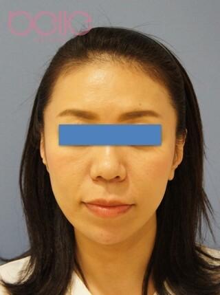ベル美容外科クリニックのアンカーリフトの症例写真(アフター)