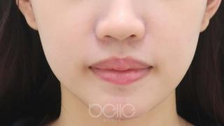 ベル美容外科クリニックの脂肪溶解注射(LINE Fit)の症例写真(アフター)