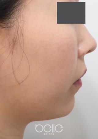 ベル美容外科クリニックの脂肪溶解注射(フーセラ)の症例写真(ビフォー)