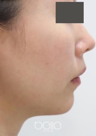 ベル美容外科クリニックの脂肪溶解注射(フーセラ)の症例写真(アフター)