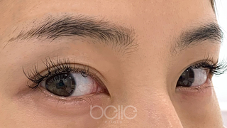 ベル美容外科クリニックのベルアートメイクの症例写真(ビフォー)