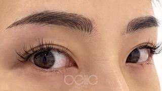 ベル美容外科クリニックのベルアートメイクの症例写真(アフター)