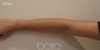 ベル美容外科クリニックの高濃度白玉点滴 10回の症例写真(アフター)