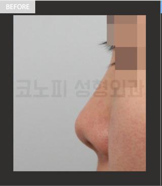 CONOPI (コノピ)整形外科のアップノーズ・短い鼻(低い鼻)の症例写真(ビフォー)