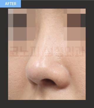 CONOPI (コノピ)整形外科のアップノーズ・短い鼻(低い鼻)の症例写真(アフター)
