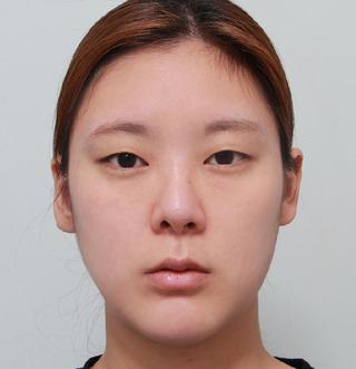 ギャルムハン整形外科の輪郭3点の症例写真(ビフォー)
