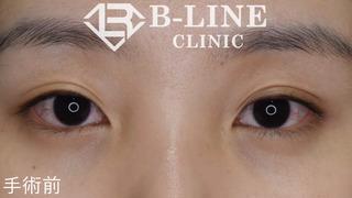 B-LINE CLINICの韓流目頭切開術・切開法二重術 手術後3ヵ月の症例写真(ビフォー)