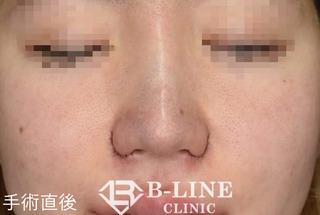 B-LINE CLINICのBL式鼻尖形成術・小鼻縮小術・鼻クレビエル注入 手術直後の症例写真(アフター)