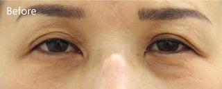 MIYAフェイスクリニックの見開き拡大術(眼瞼下垂術)+下眼瞼たるみ取り(ハムラ法)の症例写真(ビフォー)
