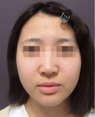 銀座TAクリニックのツヤ肌コラーゲンリフト+バッカルファットの症例写真(ビフォー)