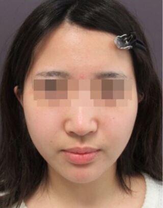 銀座TAクリニックのツヤ肌コラーゲンリフト+バッカルファットの症例写真(アフター)