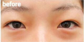 高崎TAクリニックアソシエの全切開二重+目頭切開の症例写真(ビフォー)