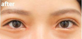 高崎TAクリニックアソシエの全切開二重+目頭切開の症例写真(アフター)