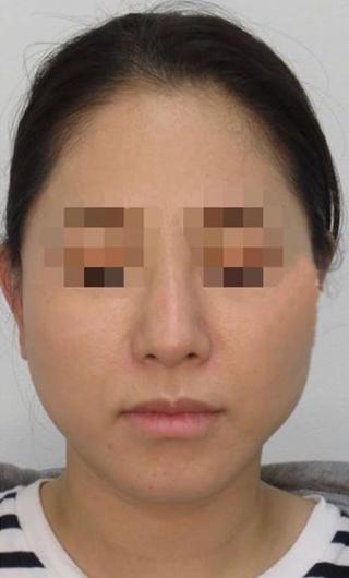 福岡TAクリニックのTAC式ツヤ肌コラーゲンリフトの症例写真(アフター)