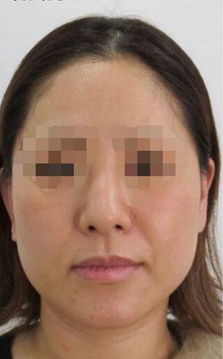 福岡TAクリニックのTAC式ツヤ肌コラーゲンリフトの症例写真(ビフォー)