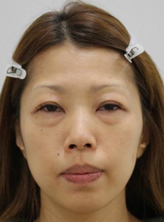 セオリークリニックの脱脂術リポトランスファー+脂肪注入の症例写真(ビフォー)