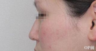 福岡TAクリニックの鼻尖4Dノーズ+鼻尖縮小術の症例写真(ビフォー)