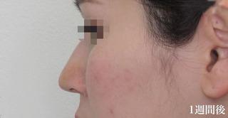 福岡TAクリニックの鼻尖4Dノーズ+鼻尖縮小術の症例写真(アフター)
