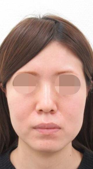 大阪TAクリニックのツヤ肌コラーゲンリフト+バッカルファット除去の症例写真(ビフォー)
