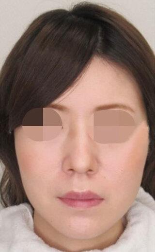 大阪TAクリニックのツヤ肌コラーゲンリフト+バッカルファット除去の症例写真(アフター)