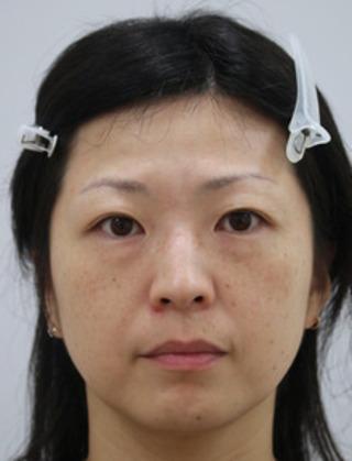 セオリークリニックの脱脂術+ピュアグラフティングの症例写真(ビフォー)