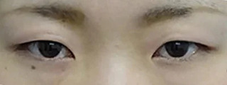 東京中央美容外科 郡山院(郡山下肢静脈瘤クリニック)のTCB式1dayクイックアイの症例写真(ビフォー)