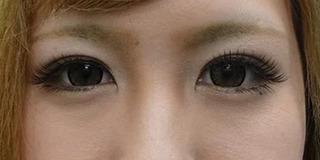 東京中央美容外科 郡山院(郡山下肢静脈瘤クリニック)のTCB式1dayクイックアイの症例写真(アフター)
