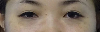 東京中央美容外科 郡山院(郡山下肢静脈瘤クリニック)の目頭切開の症例写真(ビフォー)
